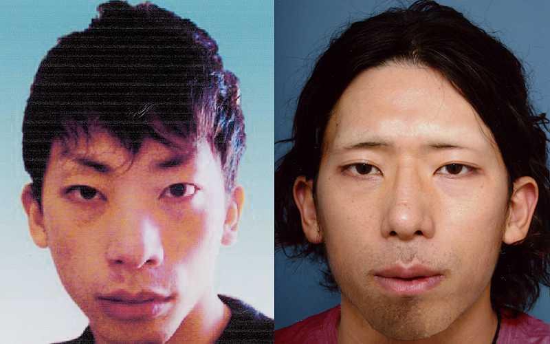 Tatsuya Ichihashi - före och efter plastikoperationen.