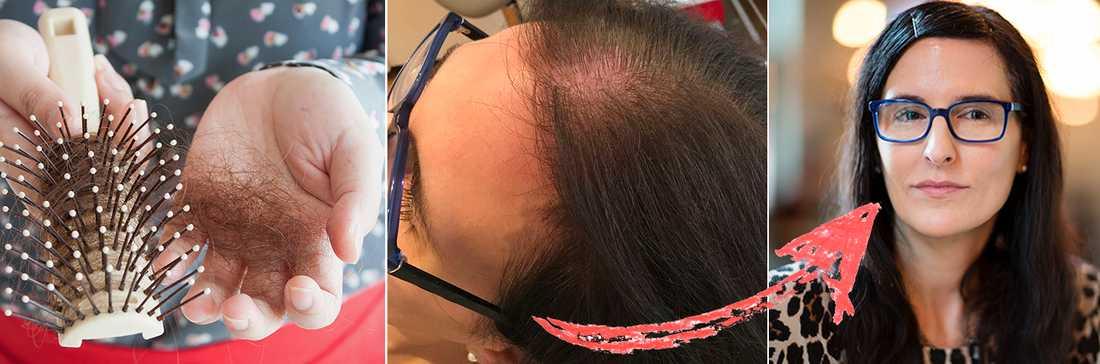 få tjockare hår kvinna