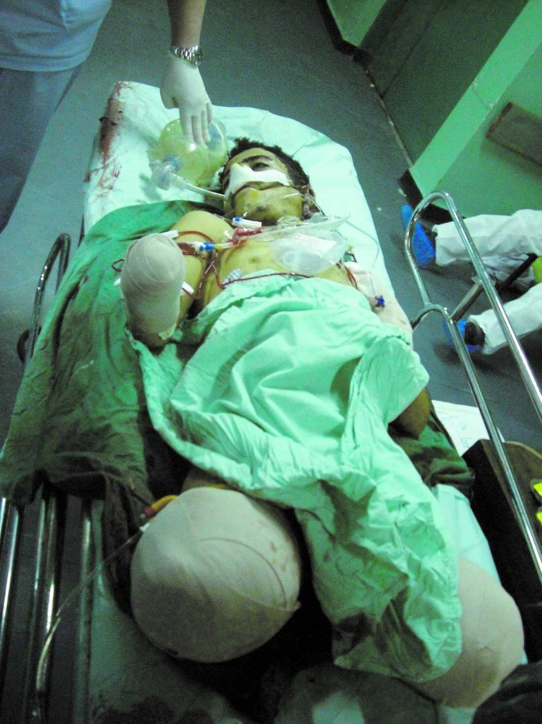 Den 17-årige pojken är allvarligt skadad och läkarna tvingas amputera båda benen och en arm.