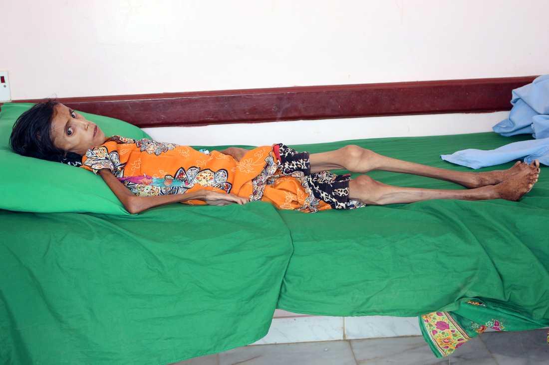 Utmärglade Fatima Ibrahim Hadi, 12, väger bara 10 kilo.