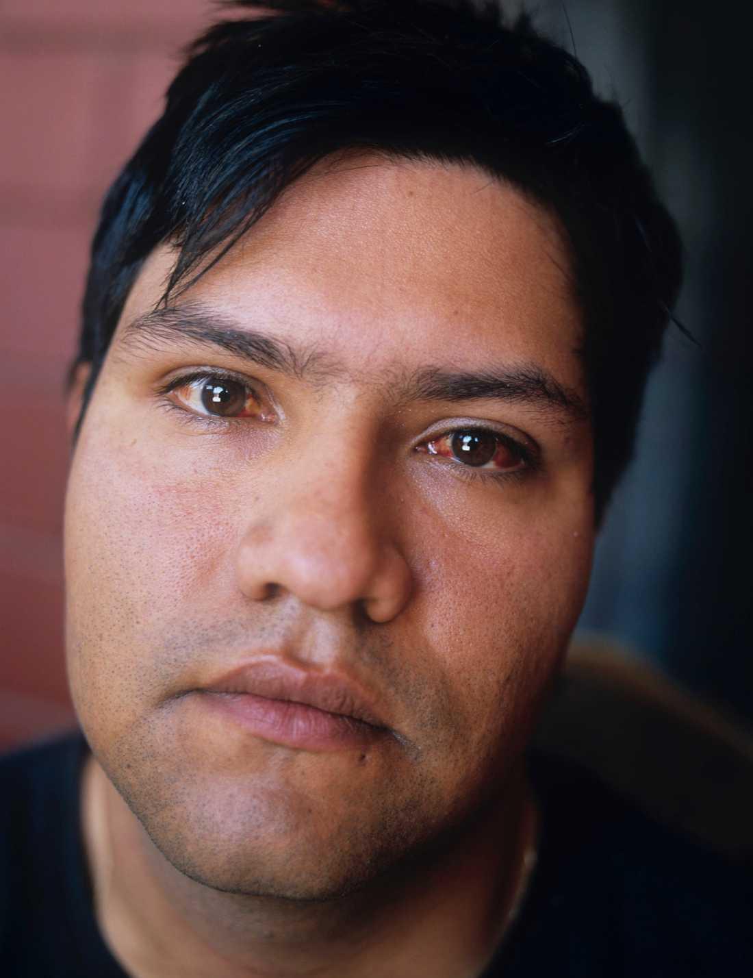 Elvis Rojas Rojas får njursten minst en gång om året, han lider också bland annat av högt blodtryck, så pass att hans ögon fylls med blod.