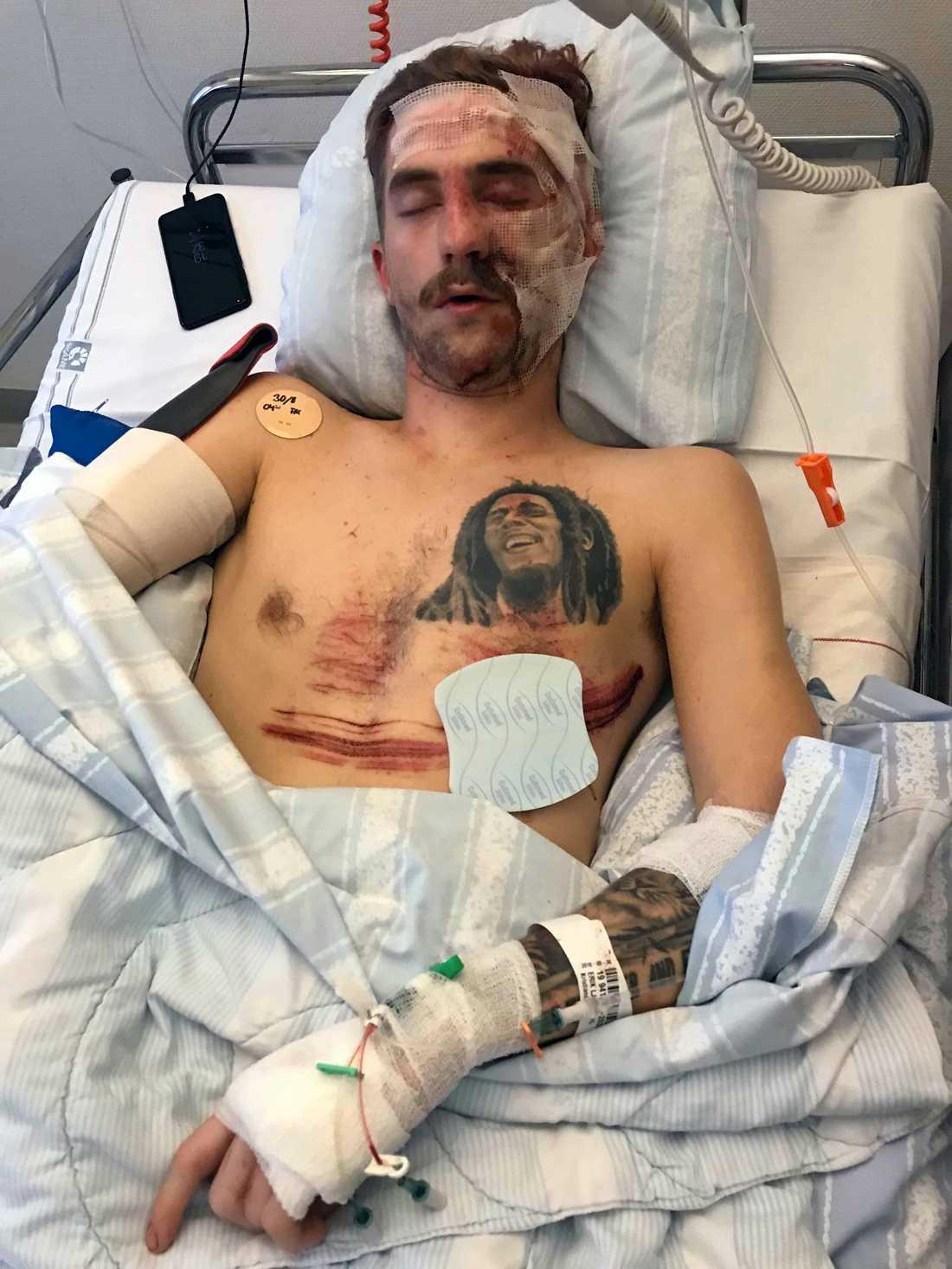 Erik Ljungdahl fick tillbringa två veckor på sjukhuset.
