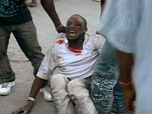 SKRIKER AV SMÄRTA En skadad man får hjälp efter att ha skadats i jordbävningen i Port-au-Prince.