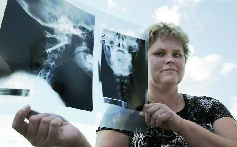 På röntgenbilden syns de två titanskruvar som gett Anneli ett bättre liv.