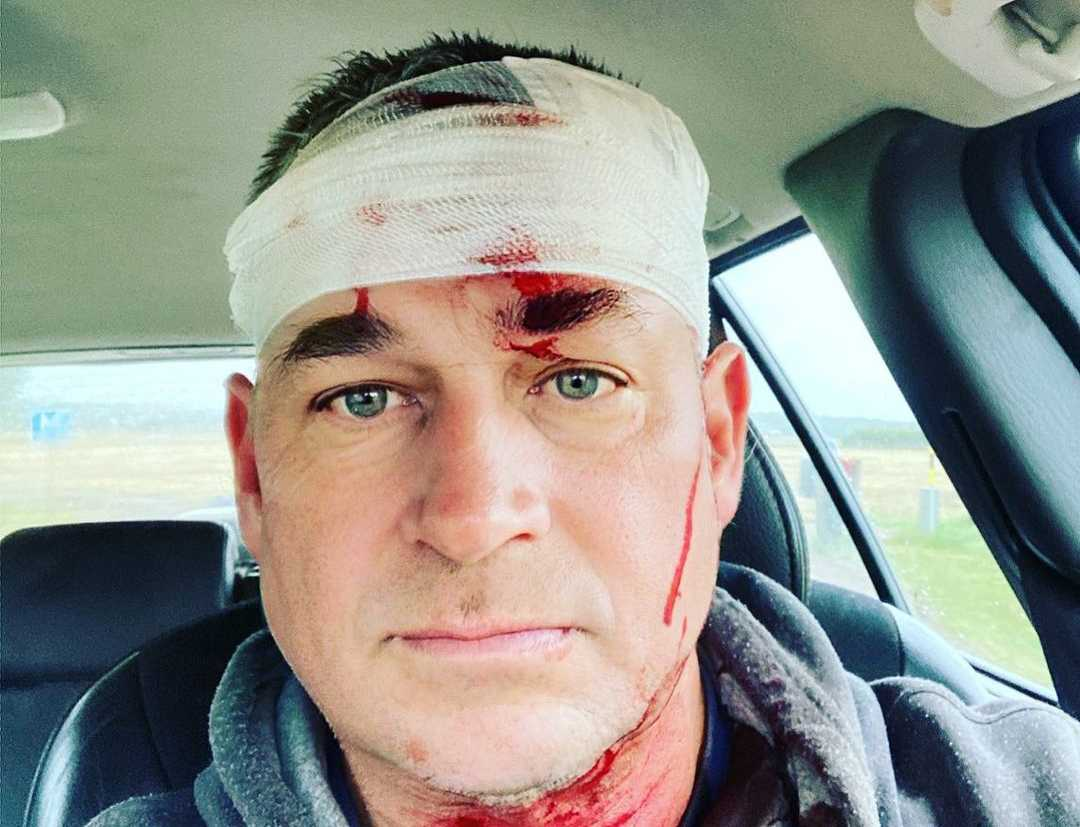 Benny Christensen efter olyckan.