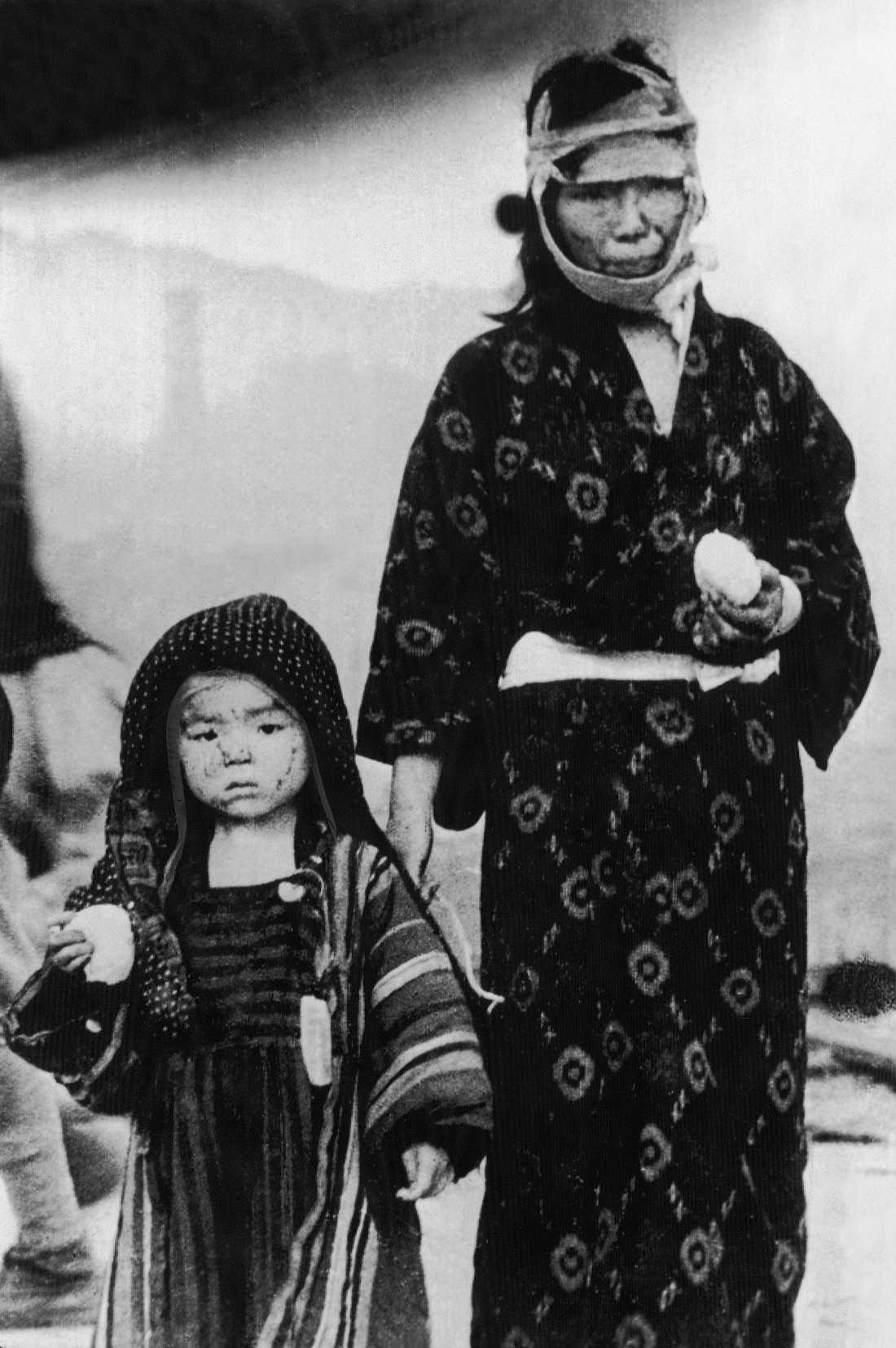 Överlevde En kvinna och ett barn som överlevde den andra bombningen, i Nagasaki, den 9 augusti 1945.
