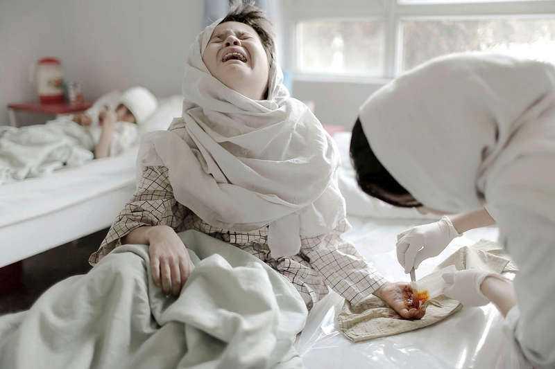 """8 MARS, KABUL I AFGHANISTAN USA trappar ner närvaron i Afghanistan men våldet fortsätter. Sjukhuset """"Emergency"""" i Kabul tar emot skadade offer. Barn som lever i en vardag fylld av våld. Anar Khal, 10, skadades i en granatattack och kom in till sjukhuset först efter två dagar."""