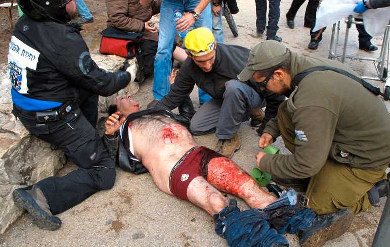 En skadad man efter explosionen.