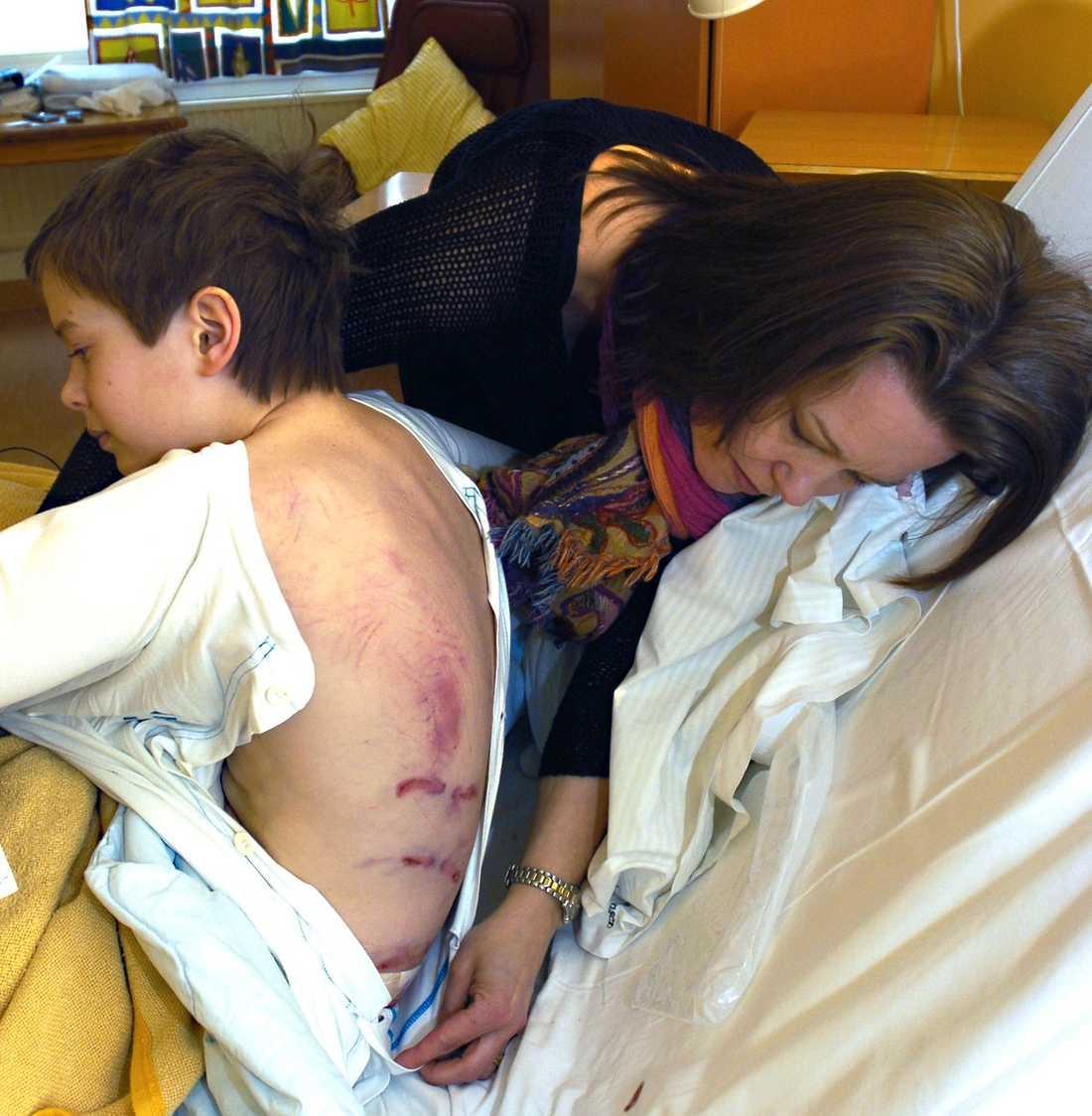 """EN TUFFING Olle har kraftiga rivmärken på ryggen efter björnens klor. Nu har han fått sällskap av mamma Julia på sjukhuset. """"Olle är en riktigt tuff kille. Själv har jag björnfrossa och tordes inte ens gå på Skansen som liten"""", säger hon."""