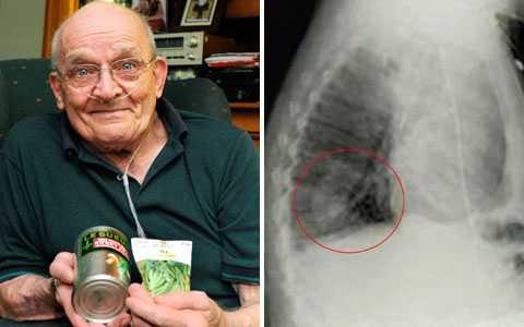 fläck på lungan cancer