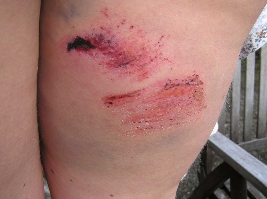 Caroline fick rejäla rejäla skrapsår efter kornas attack.