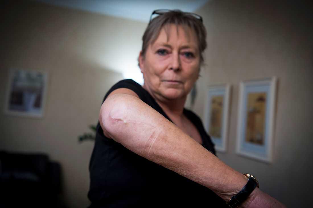Maritas armbåge blev krossad under terrorattacken och hon har inopererade plattor och skruvar i armen.