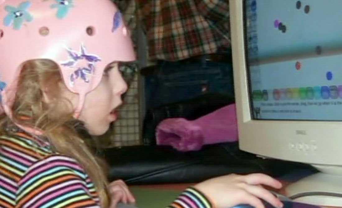 Nioåriga Cameron har tillfrisknat enormt snabbt från sin svåra opereration, där halva hjärnan togs bort.