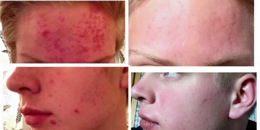 stark acne medicin