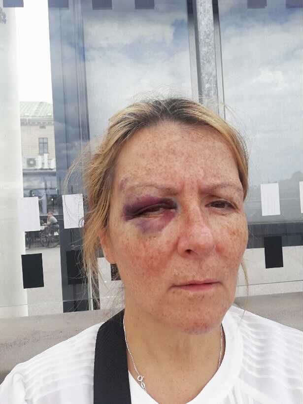 Maria (54) got a real bruise after the incident.