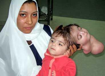 """TVILLINGEN BLINKAR OCH LER Egyptiska Manar Maged föddes med två huvuden. Det extra huvudet hade ett ansikte som log och blinkade ibland. Fenomenet kallas """"parasiterande"""" tvillingskalle och är mycket ovanligt."""