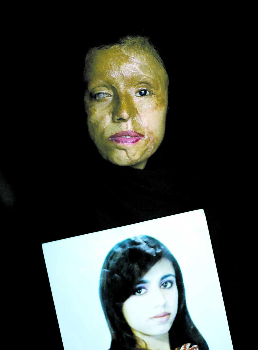 Saira Liagats, 26. Hennes högsta önskan var att få gå ut skolan. När hon blev bortgift som 15-åring grusades drömmen. Hennes man, en nära släkting, krävde att hon skulle bo med honom. När hon istället ville avsluta utbildningen hällde han frätande syra över henne. Hennes ansikte förstördes och hon förlorade synen på ena ögat. Idag har Saira plastikopererats nio gånger.