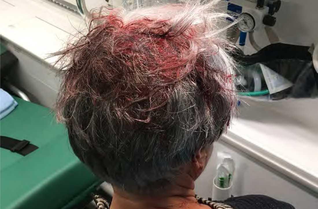 Marianne Nilssons skador efter slaget med glasflaskan.