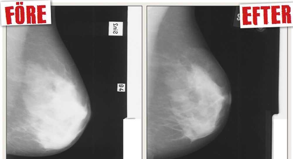 En röntgenbild som visar före och efter behandlingen med Tamoxifen.