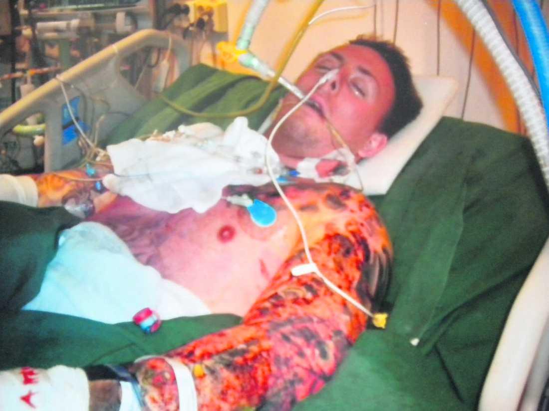 Andreas på sjukhuset. Han har genomgått 16 hudtransplantationer.