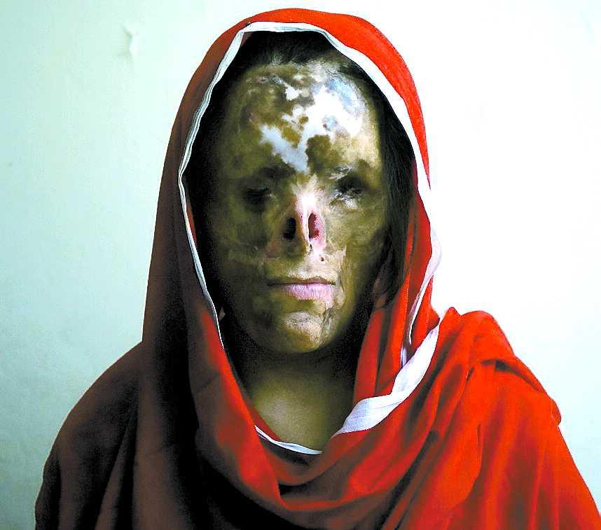 Najaf Sultana, 16. Straffades som femåring för att hon fötts till fel kön. Hennes pappa hällde fotogen över henne och tände på när hon låg och sov. Fadern ville inte ha ännu en flicka i familjen. Efter attacken blev Najaf blind och hennes föräldrar övergav henne. Nu bor hon hos släktingar och har plastikopererats femton gånger.