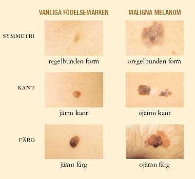 jag har hudcancer