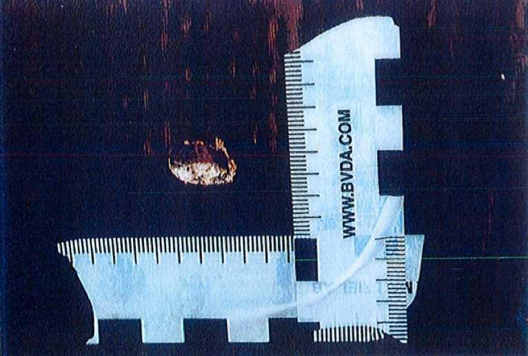 Polisen hittade ett kulhål i väggen.