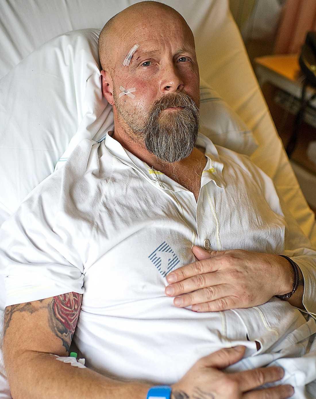 Har dödshotats Arne Johansson är öppet mot vargjakt och blivit hotad för sitt engagemang. Nu har MP-politikern blivit misshandlad och vårdas på sjukhus.