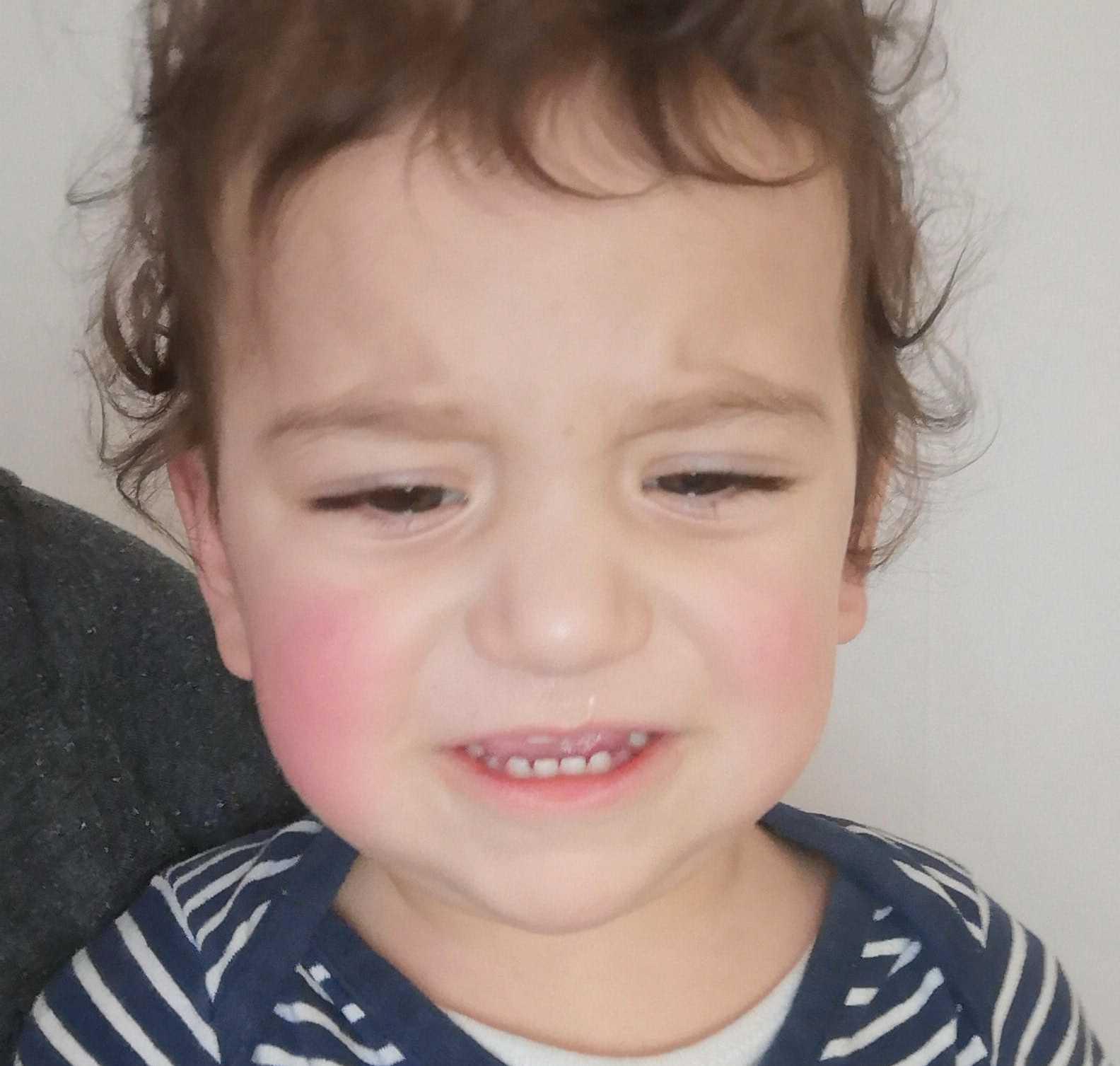 Ettåringen blev utan medicin och grät hela natten.