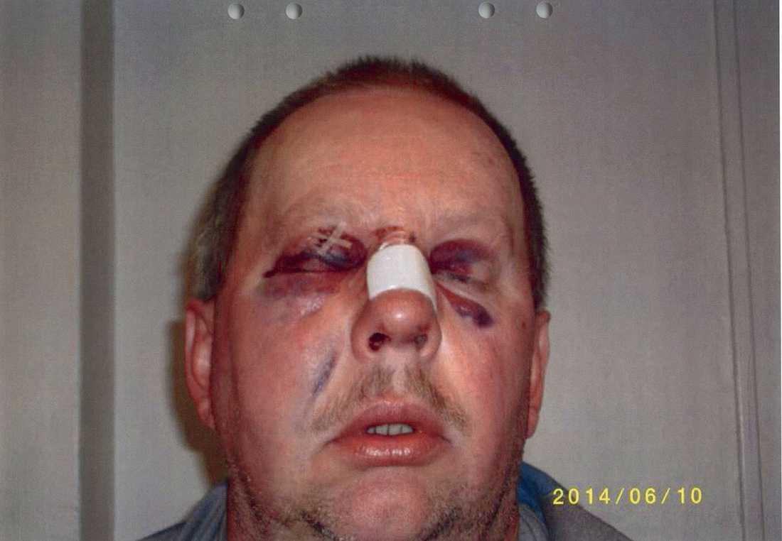 Eklund fick rejäla blåmärken.