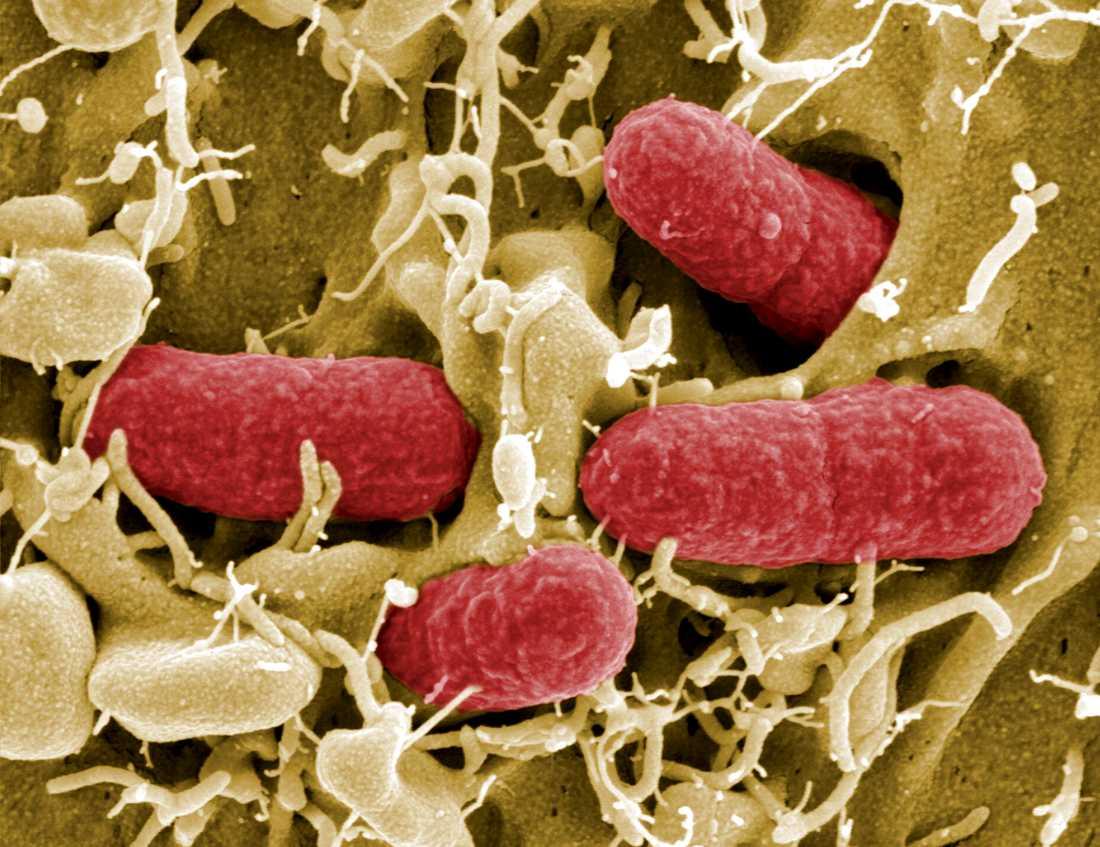 Ehecbakterier i förstorning. Arkivbild.
