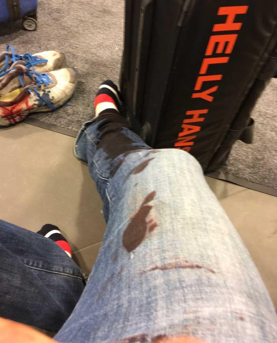 Kläder och bagage blev nedblodat efter smällen.