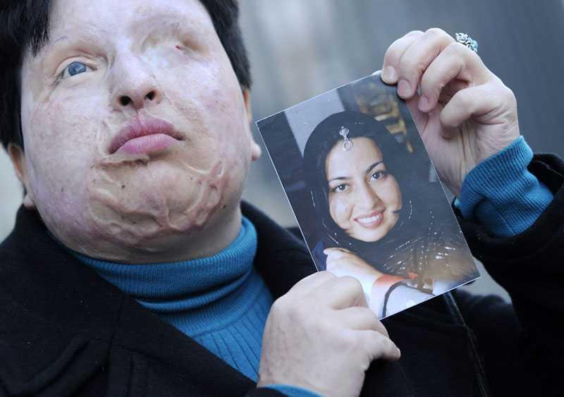 öga för öga Ameneh Bahrami sade nej till Majid Movahedis frieri. Då blev han vansinnig och hällde svavelsyra i hennes ögon. Nu får hon sin hämnd.