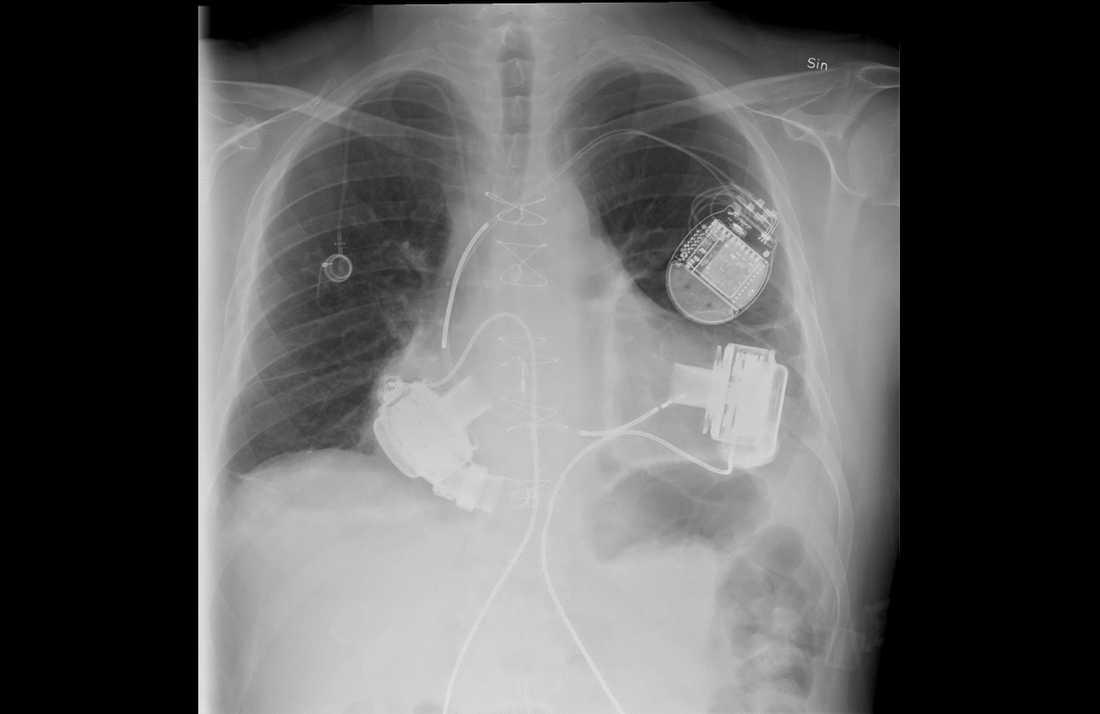 De två pumparna syns på var sin sida av hjärtat. Dosan uppe till höger på bilden är en inopererad defibrillator som Emil har haft sedan tidigare och som ligger kvar under huden nedanför nyckelbenet även om den inte behövs längre.
