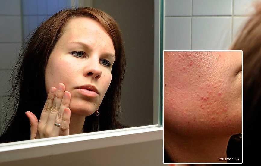 Efter  I dag har Madilyn en finare, och lugnare, hud. Infällda bilden: Så var det tidigare.