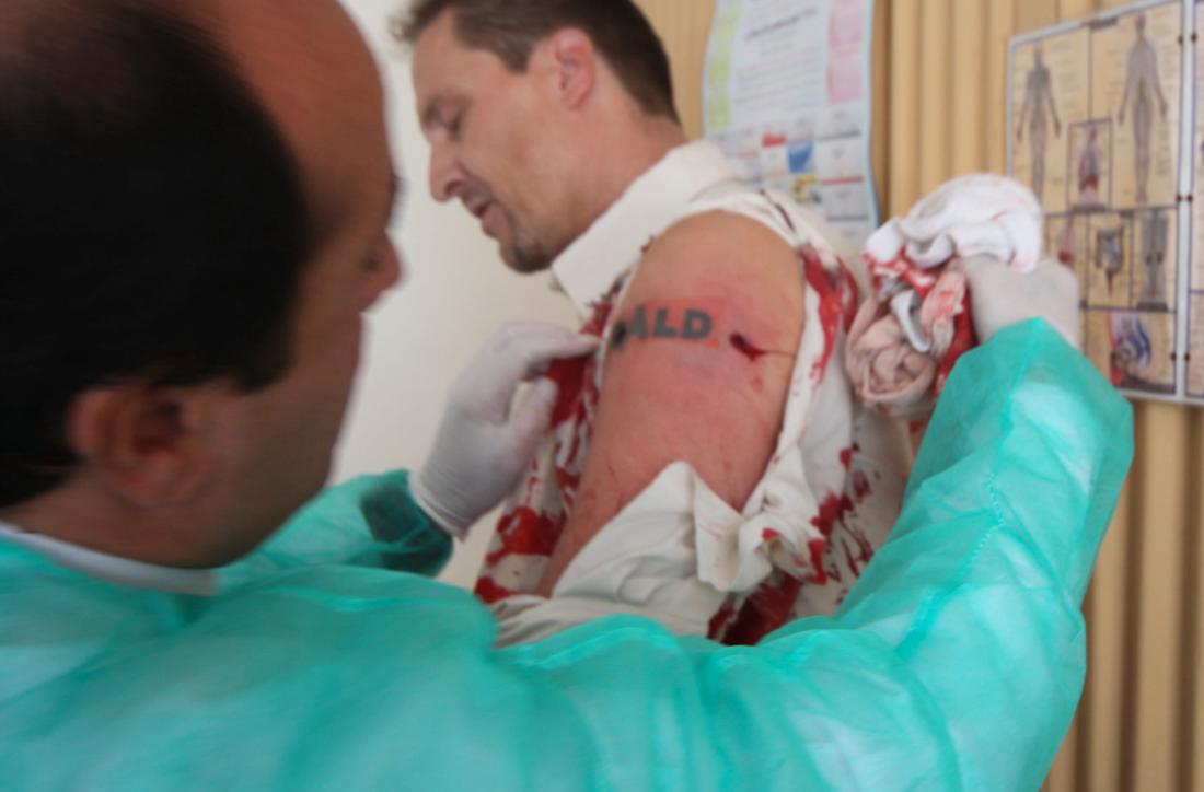 """""""Åld"""" Pål Hollender svimmade under behandlingen. """"Det som gör mig förbannad i efterhand är att min tatuering är förstörd. Nu står det """"Åld"""" och inte """"Såld"""". Hur snyggt är det?"""" säger han till Aftonbladet."""