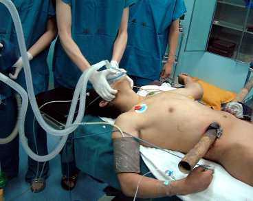 magen genomborrades Den kinesiske byggnadsarbetaren föll sex våningar - och spetsades på ett stålrör som gick rakt igenom hans mage. Här förs han in till operationen - som slutade lyckligt.