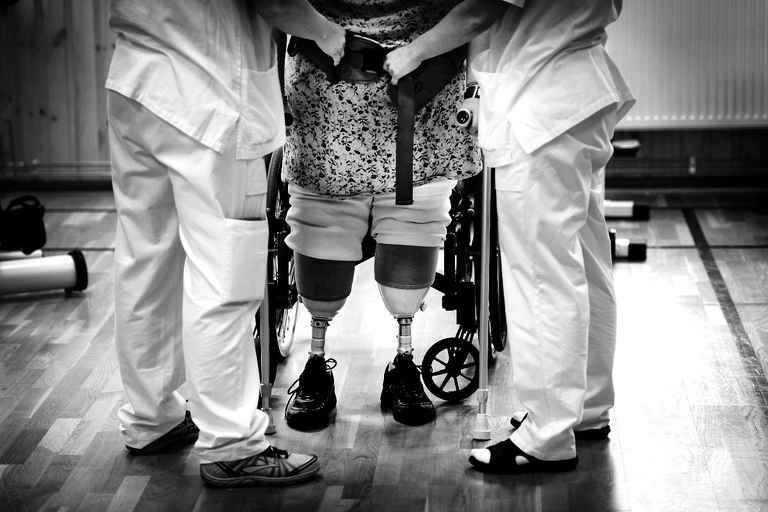 Mia har försökt gå med proteser, men det gör ont och hon ser det inte som någon lösning.
