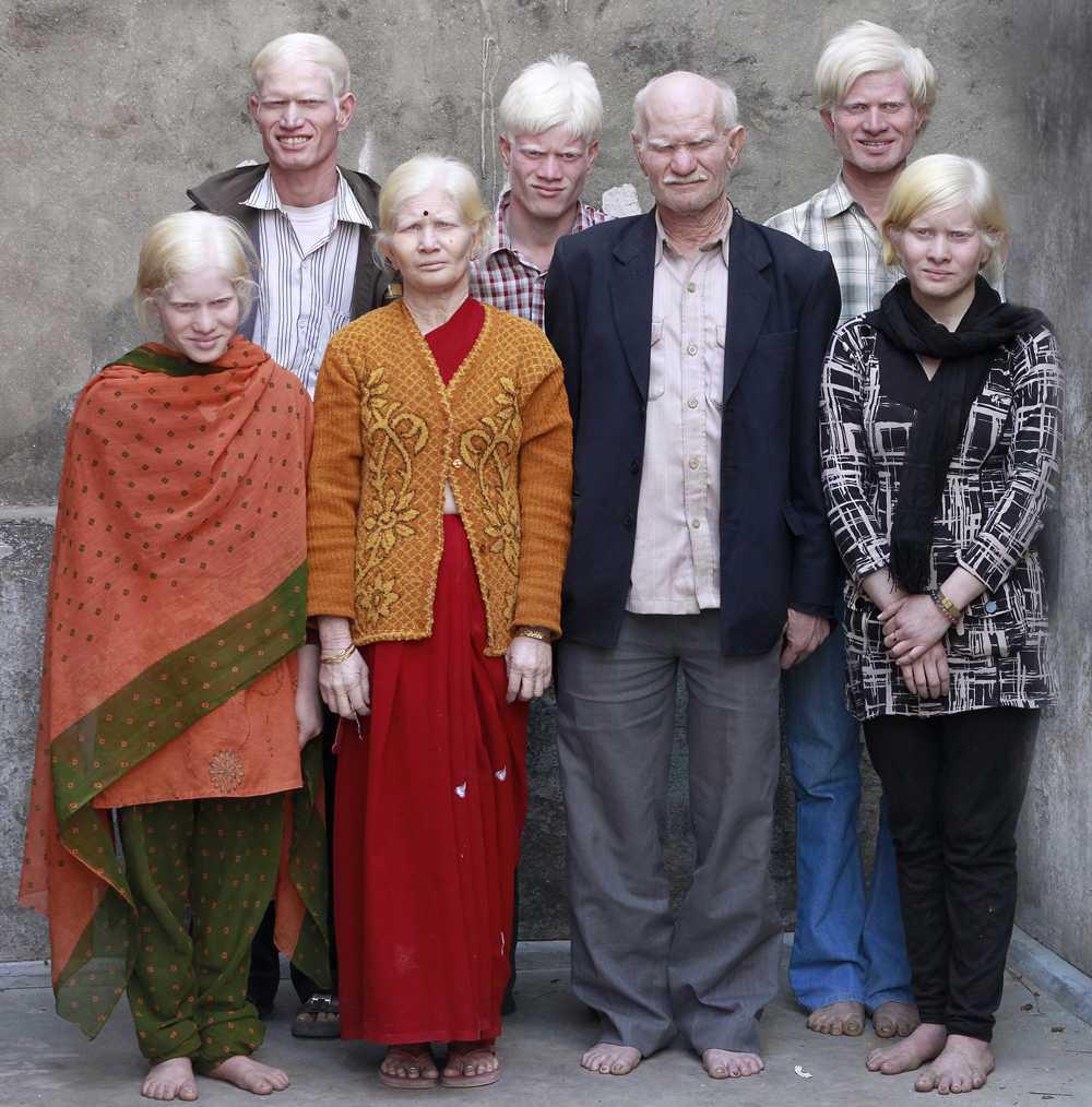 Familjen i Indien vill bli världens största albinofamilj.