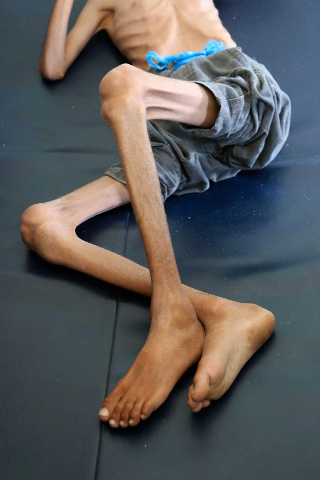 En tioårig pojke som lider av allvarlig undernäring vilar på en sjukhussäng i utkanten av staden Taiz i sydvästra Jemen. I landet pågår det FN kallar världens värsta humanitära kris. Arkivbild.