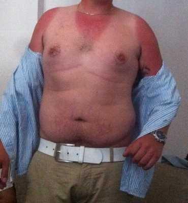 Skånsk sol En man från skånska Hallaröd hade lite för lite solkräm på sig.