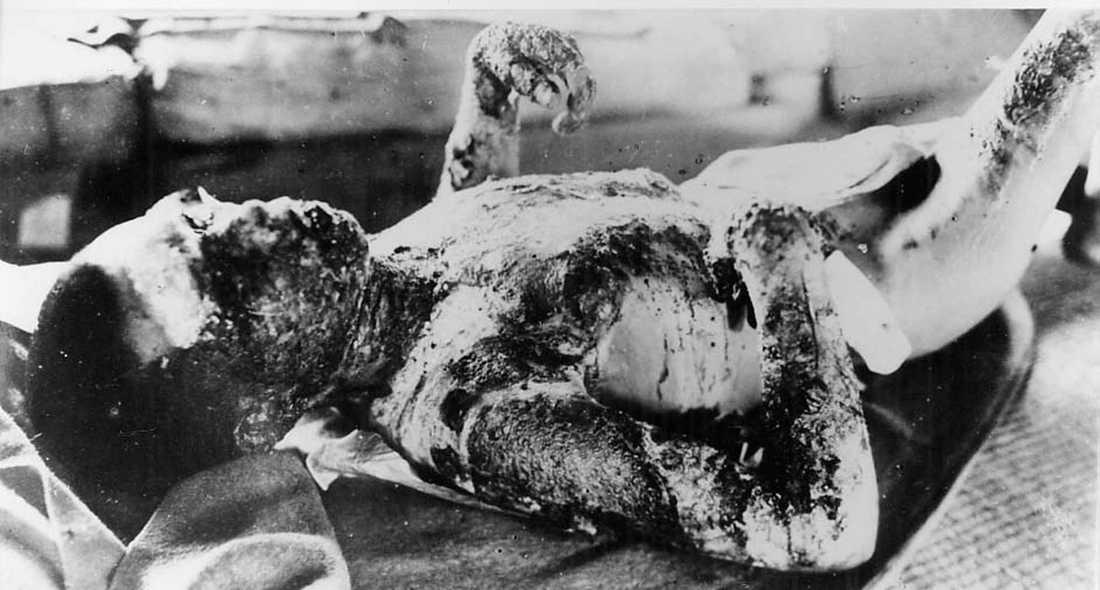 Offren Ett svårt brännskadat offer vårdas i karantän på ön Ninoshima, nio kilometer från Hiroshima. Bilden är tagen den 7 augusti 1945.
