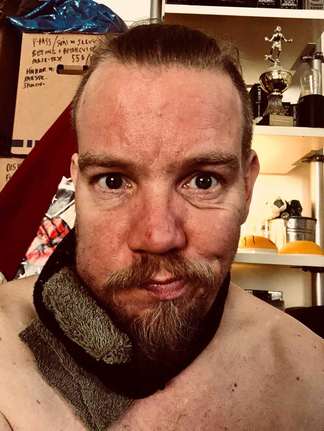 Martin visar upp det sargade ansiktet på sin Facebooksida.