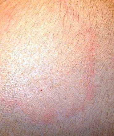 röda strimmor på huden