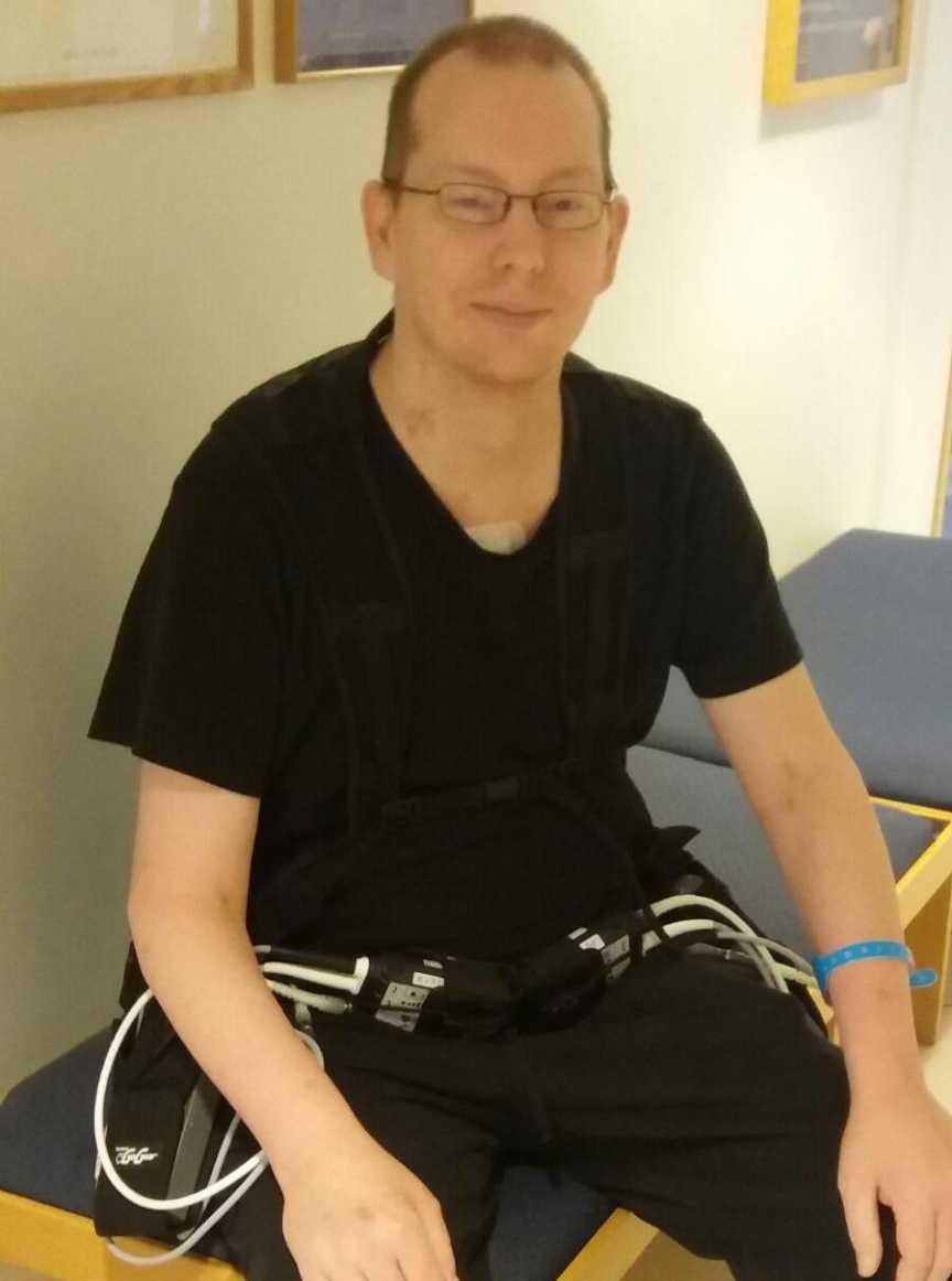 Emil Johansson, 43, lever med tre hjärtan men ingen puls – det är han först med i Norden.