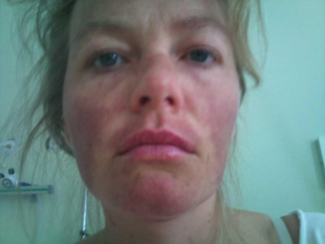 Malin fick svåra inflammationer under huden på grund av SLE.