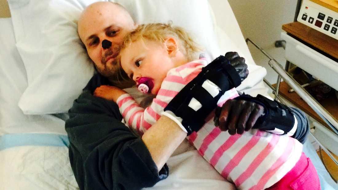 Blodförgiftningen förstörde Hempas näsa. Här hälsar dottern Mireya på under sjukhusvistelsen.