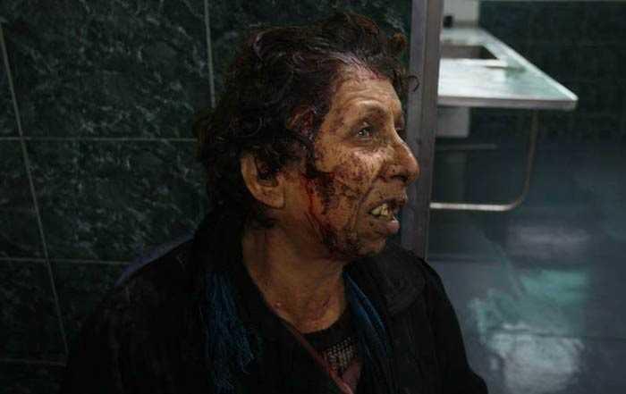 En palestinsk kvinna väntar på vård på Gazas Citys sjukhus Al Shifa.