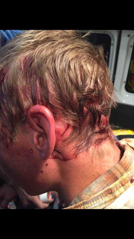 Och för mindre än ett år sedan bet en björn tag i hans huvud och släpade honom.
