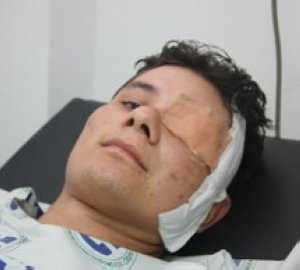 Jader Torres Mota kommer att bli blind på ena ögat, men är glad att vara vid liv.